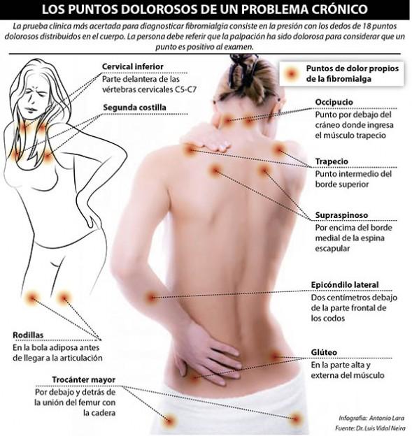 Prueba clínica Fibromialgia